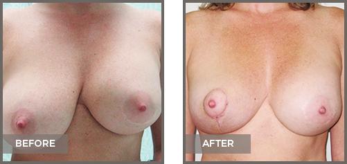 ba-breast1-Symmetrization