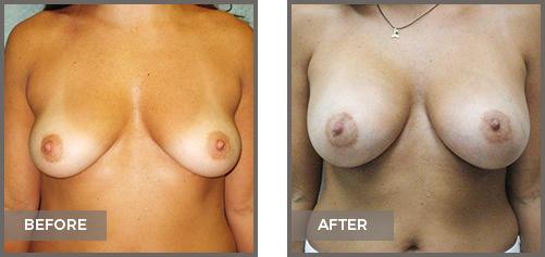 ba-breast10-Breast-Augmentation