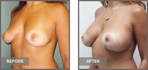 ba-breast10b-Breast-Augmentation