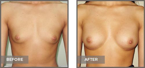 ba-breast11-Breast-Augmentation