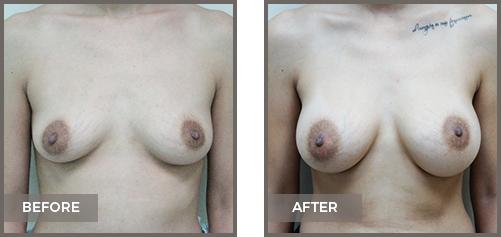 ba-breast12-Breast-Augmentation