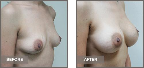 ba-breast12b-Breast-Augmentation