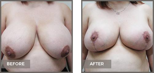 ba-breast2-Breast-Lift