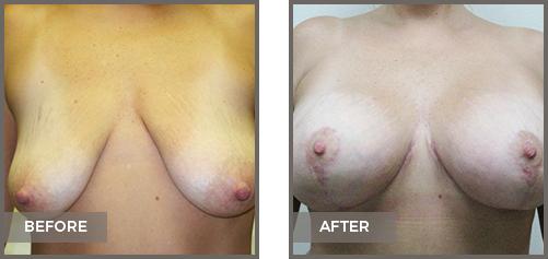 ba-breast3-Breast-Lift