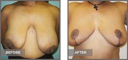 ba-breast4-Breast-Lift