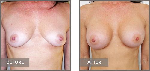 ba-breast5-Breast-Augmentation
