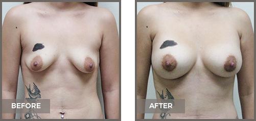 ba-breast6-Breast-Augmentation