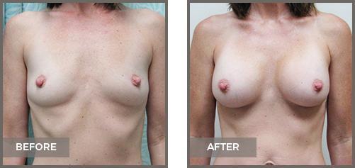 ba-breast7-Breast-Augmentation