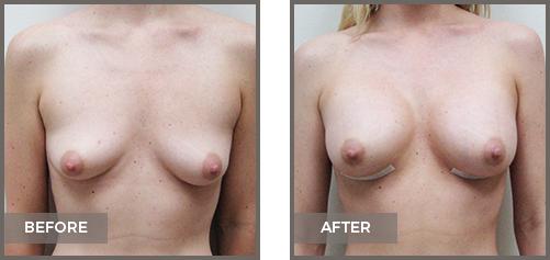 ba-breast8-Breast-Augmentation