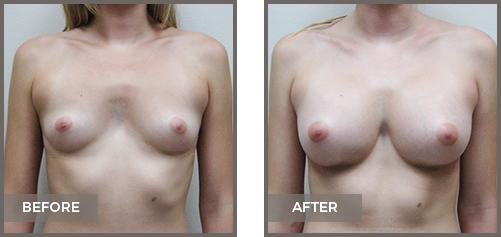 ba-breast9-Breast-Augmentation
